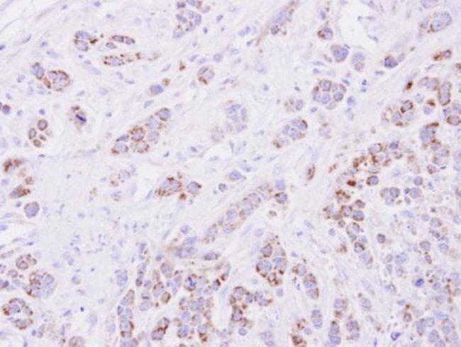 15-PGDH Rabbit anti-Human, Polyclonal, Invitrogen 100 µL; Unconjugated