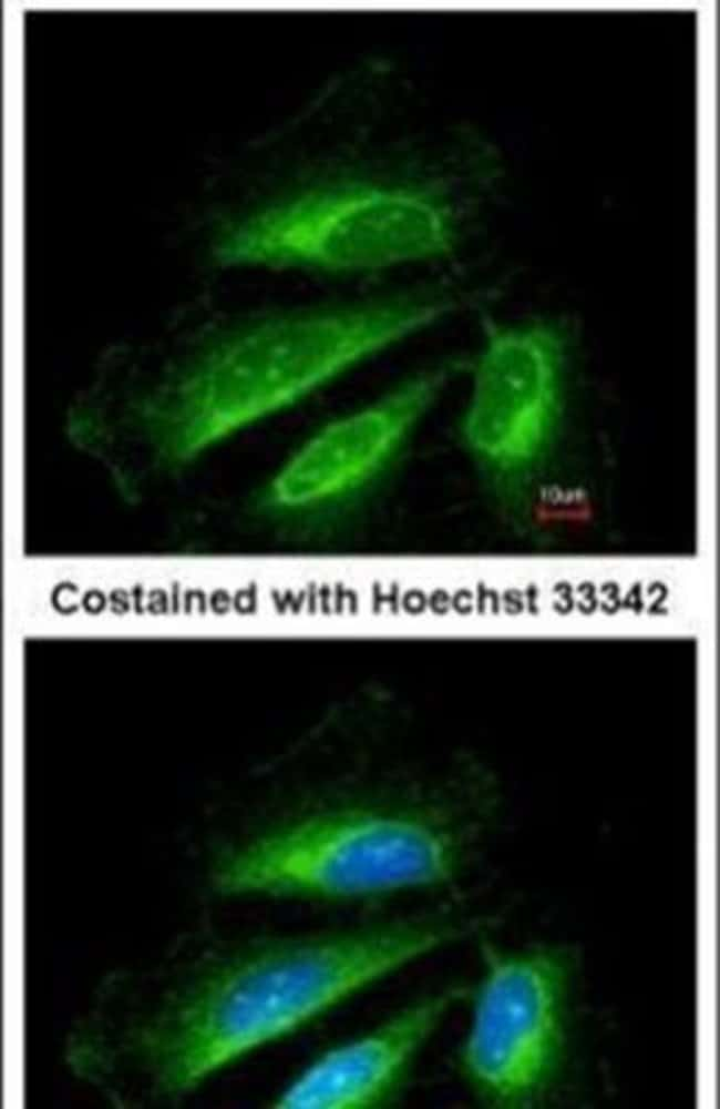 SDHB Rabbit anti-Human, Mouse, Polyclonal, Invitrogen 100 µL; Unconjugated