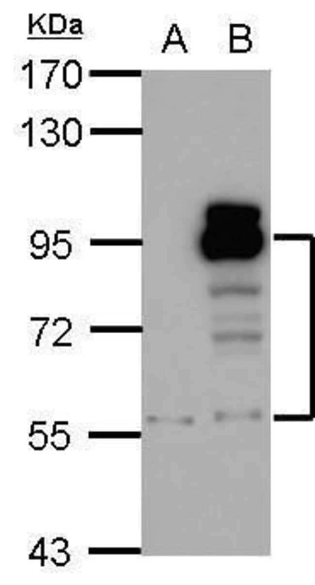 PDE4D Rabbit anti-Human, Polyclonal, Invitrogen 100 µL; Unconjugated