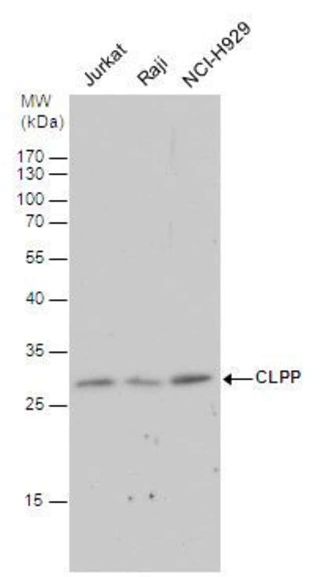 CLPP Rabbit anti-Human, Polyclonal, Invitrogen 100 µL; Unconjugated