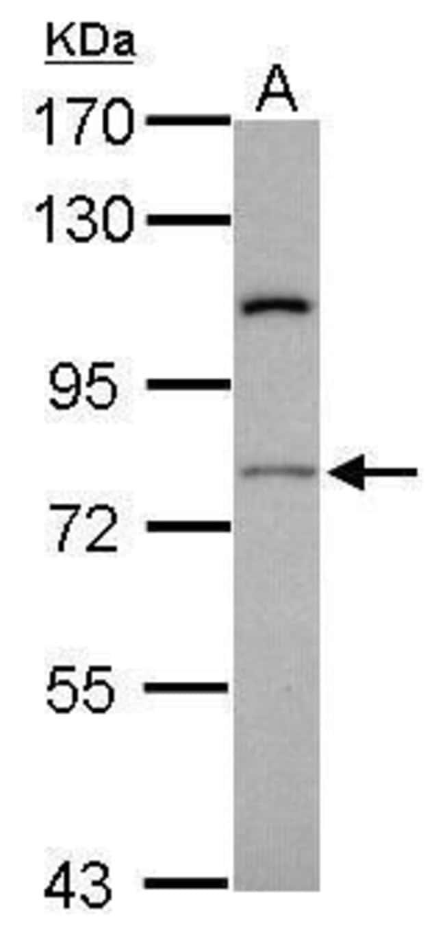 RASGRP4 Rabbit anti-Human, Polyclonal, Invitrogen 100 µL; Unconjugated