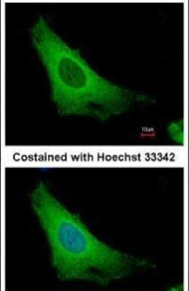 ARF3 Rabbit anti-Human, Polyclonal, Invitrogen 100 µL; Unconjugated