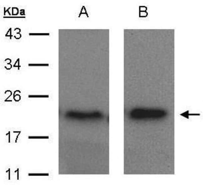 ARF5 Rabbit anti-Human, Polyclonal, Invitrogen 100 µL; Unconjugated