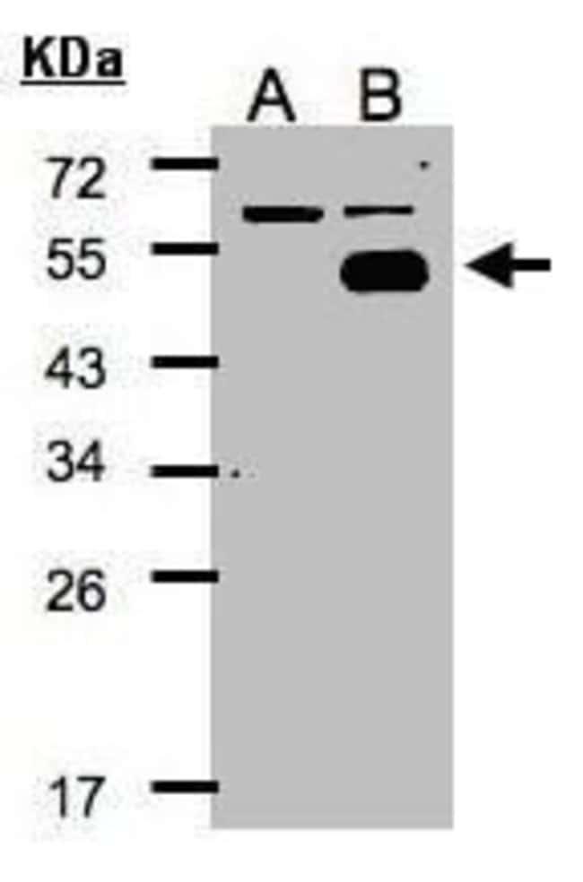NR2F1 Rabbit anti-Human, Polyclonal, Invitrogen 100 µL; Unconjugated