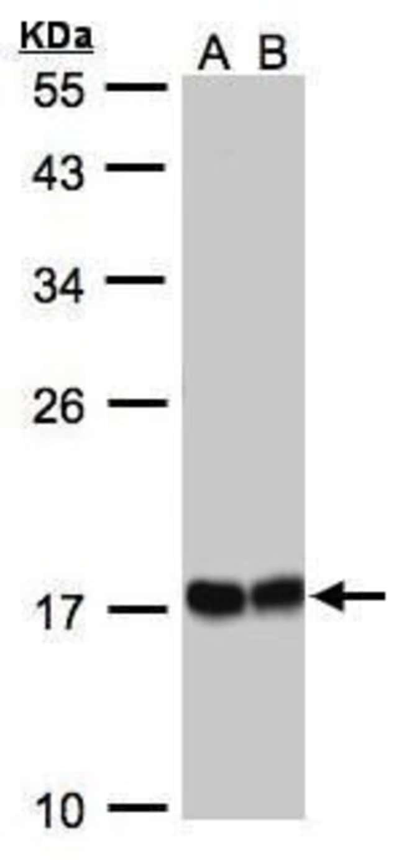 HSPB8 Rabbit anti-Human, Polyclonal, Invitrogen 100 µL; Unconjugated
