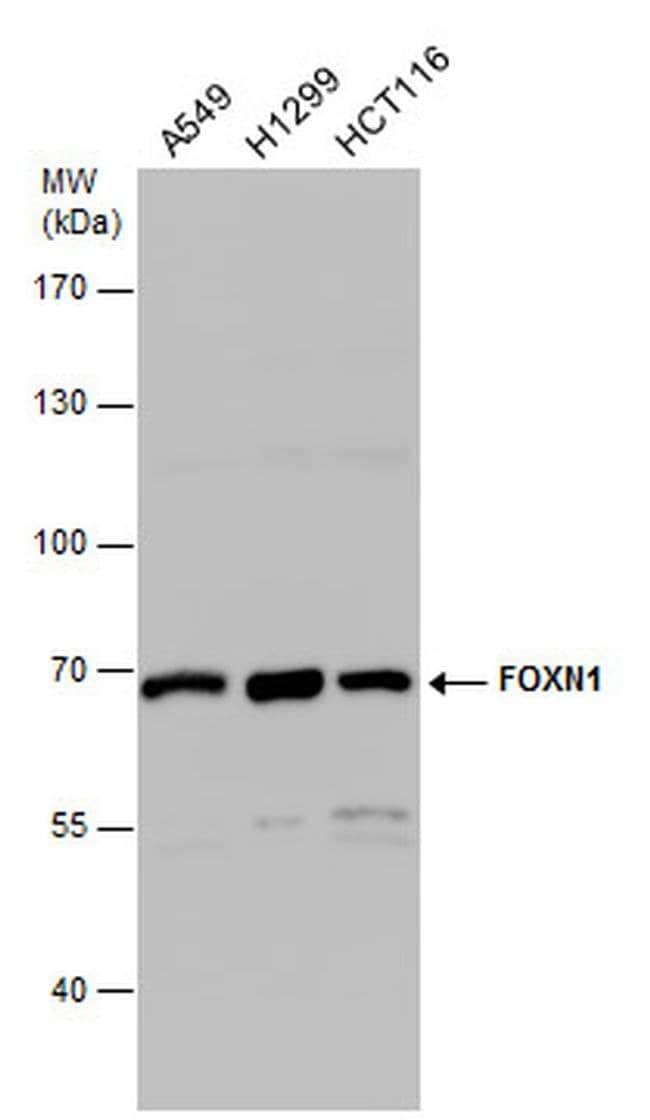FOXN1 Rabbit anti-Human, Polyclonal, Invitrogen 100 µL; Unconjugated