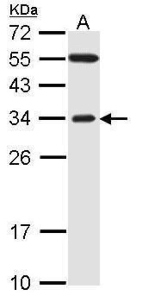 FBXO2 Rabbit anti-Human, Polyclonal, Invitrogen 100 µL; Unconjugated
