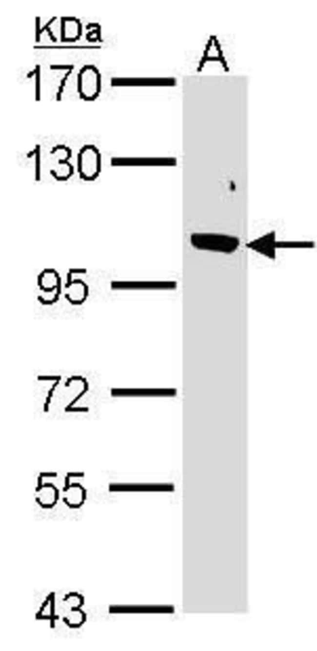 FBXO43 Rabbit anti-Human, Mouse, Polyclonal, Invitrogen 100 µL; Unconjugated