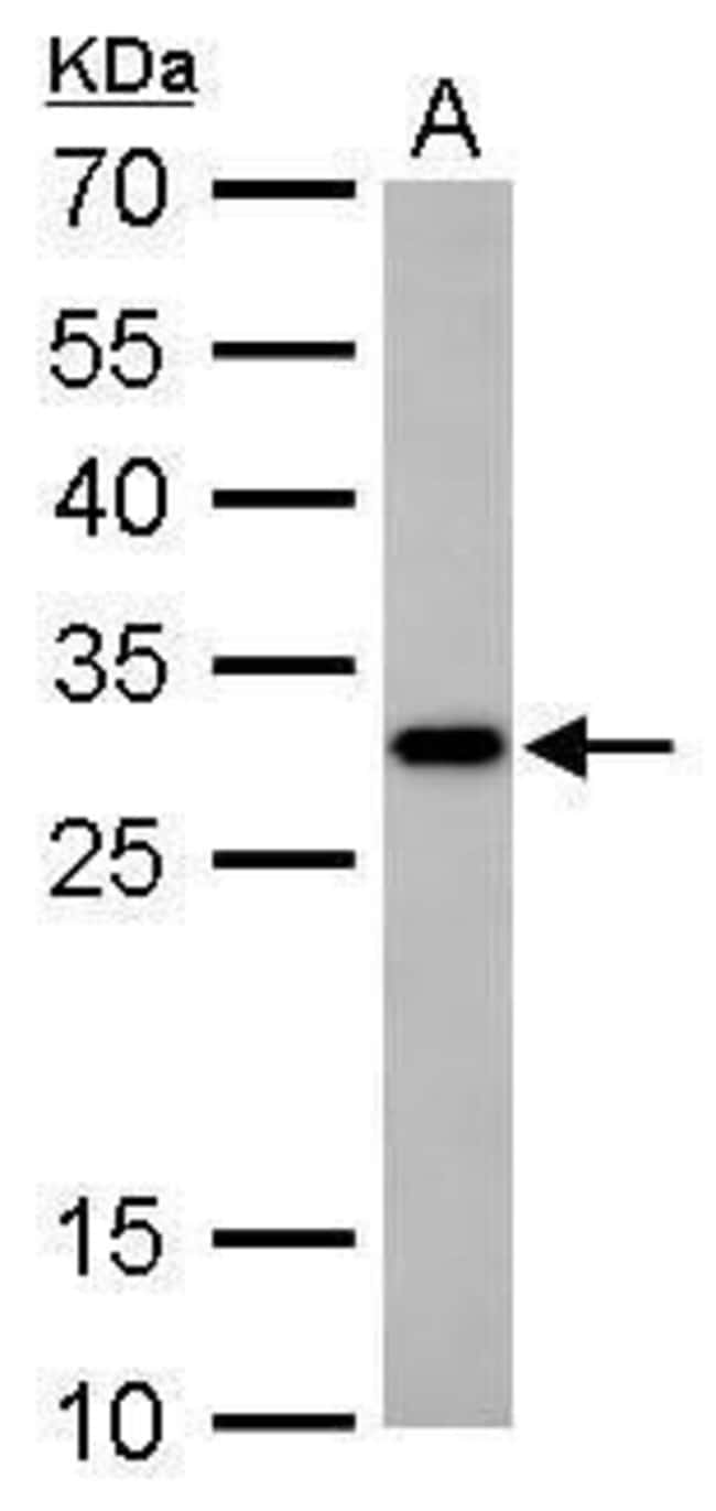 CTDSP2 Rabbit anti-Human, Mouse, Rat, Polyclonal, Invitrogen 100 µL;