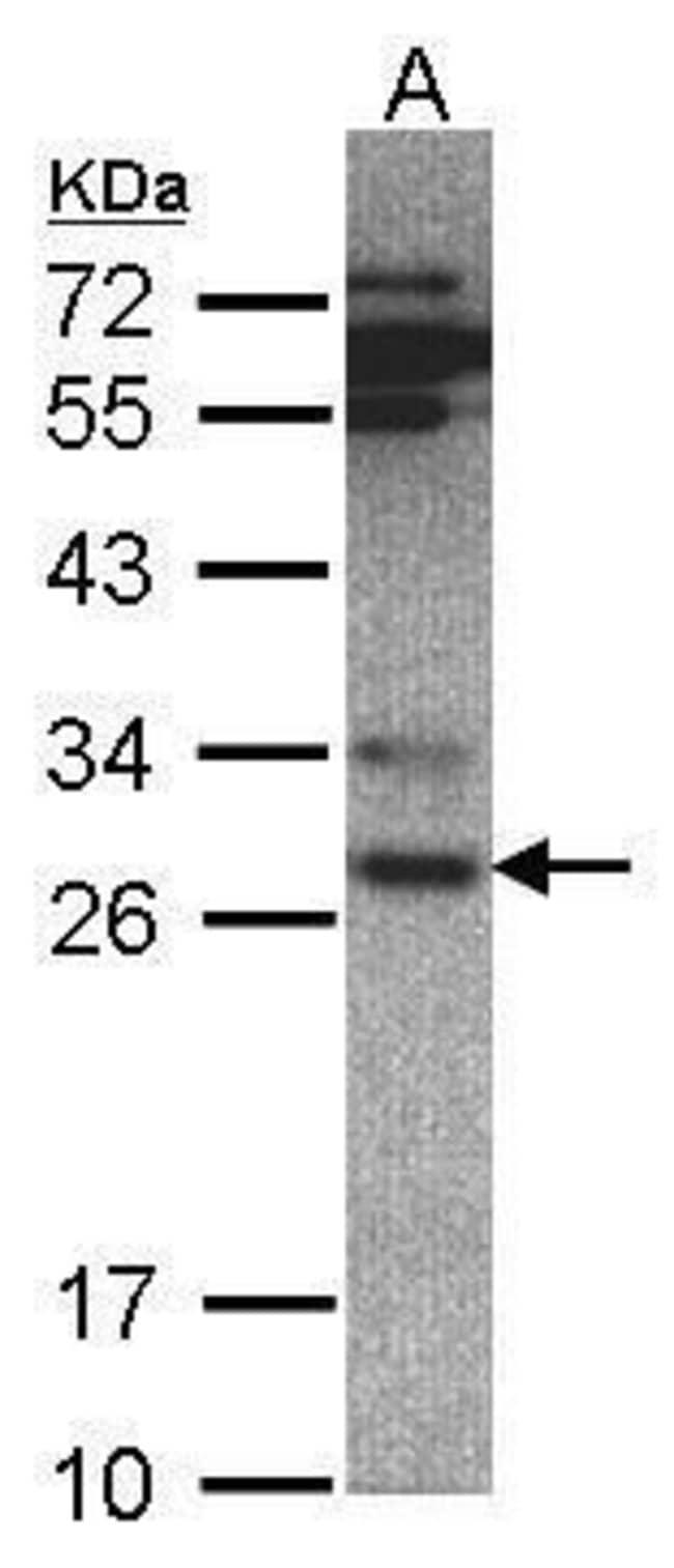 PSMA6 Rabbit anti-Human, Mouse, Polyclonal, Invitrogen 100 µL; Unconjugated
