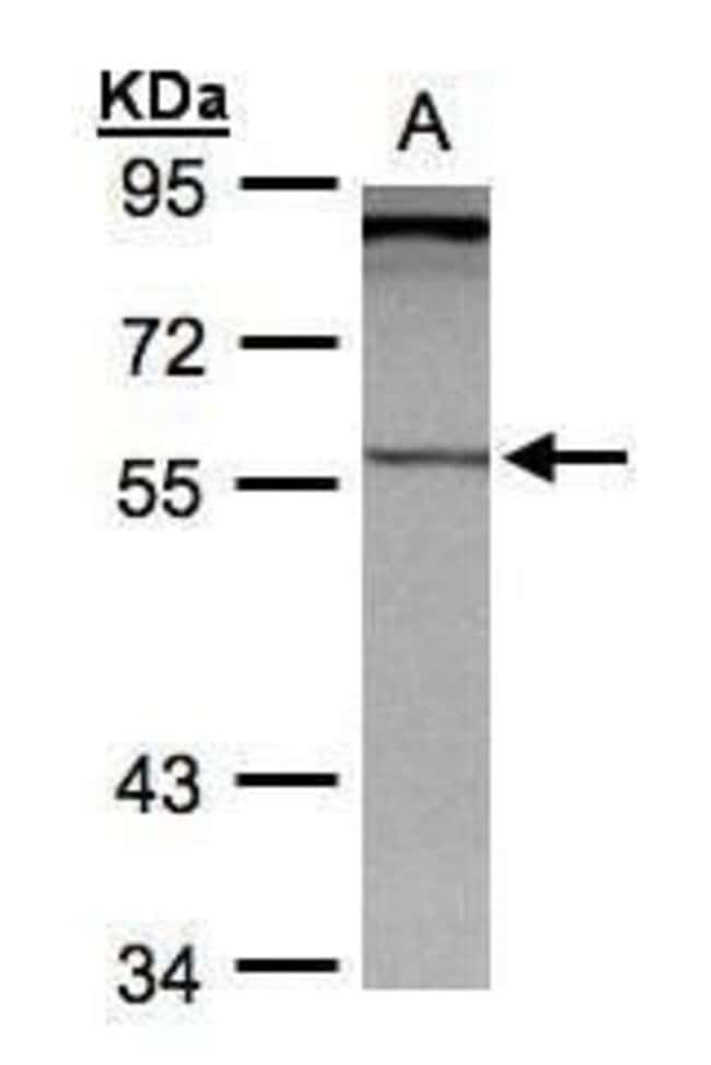 PCCB Rabbit anti-Human, Polyclonal, Invitrogen 100 µL; Unconjugated