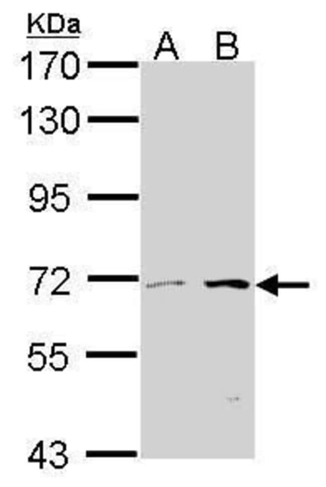 TPL2 Rabbit anti-Human, Mouse, Polyclonal, Invitrogen 100 µL; Unconjugated