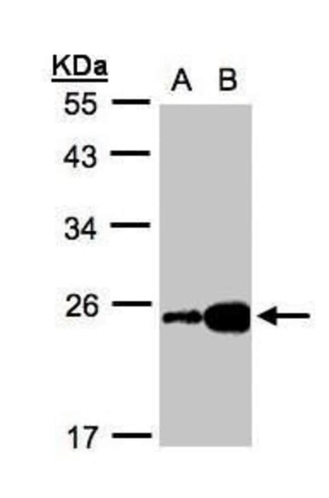 FABP6 Rabbit anti-Human, Polyclonal, Invitrogen 100 µL; Unconjugated