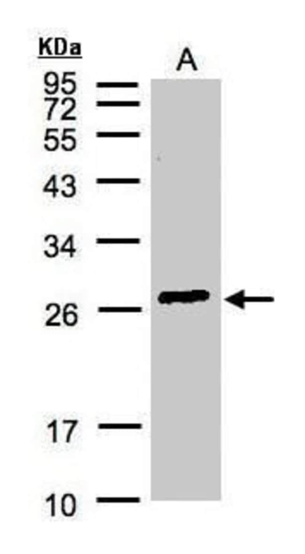 GSTA2 Rabbit anti-Human, Polyclonal, Invitrogen 100 µL; Unconjugated