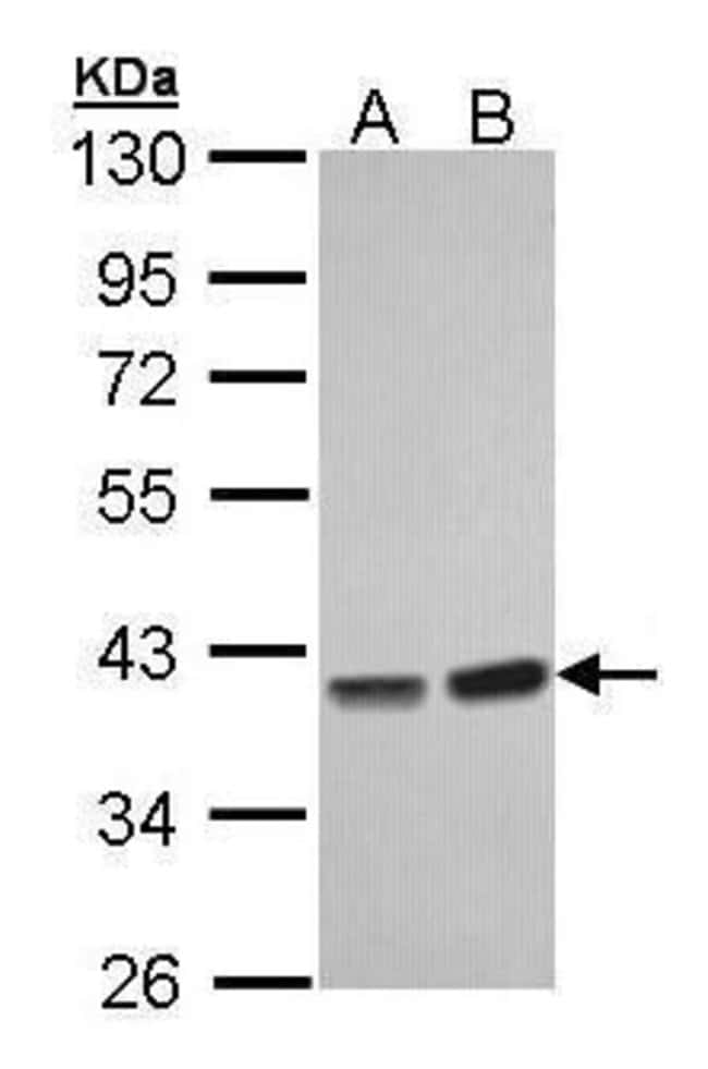 PP1 gamma Rabbit anti-Human, Mouse, Polyclonal, Invitrogen 100 µL;
