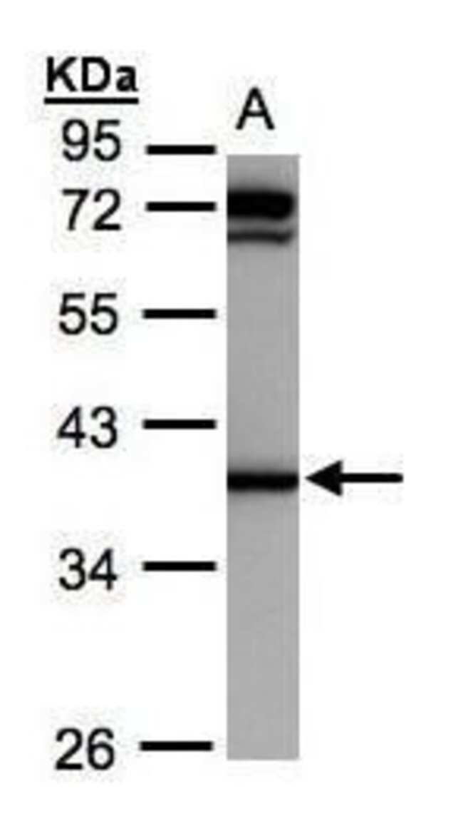 AKR1C1 Rabbit anti-Human, Mouse, Polyclonal, Invitrogen 100 µL; Unconjugated