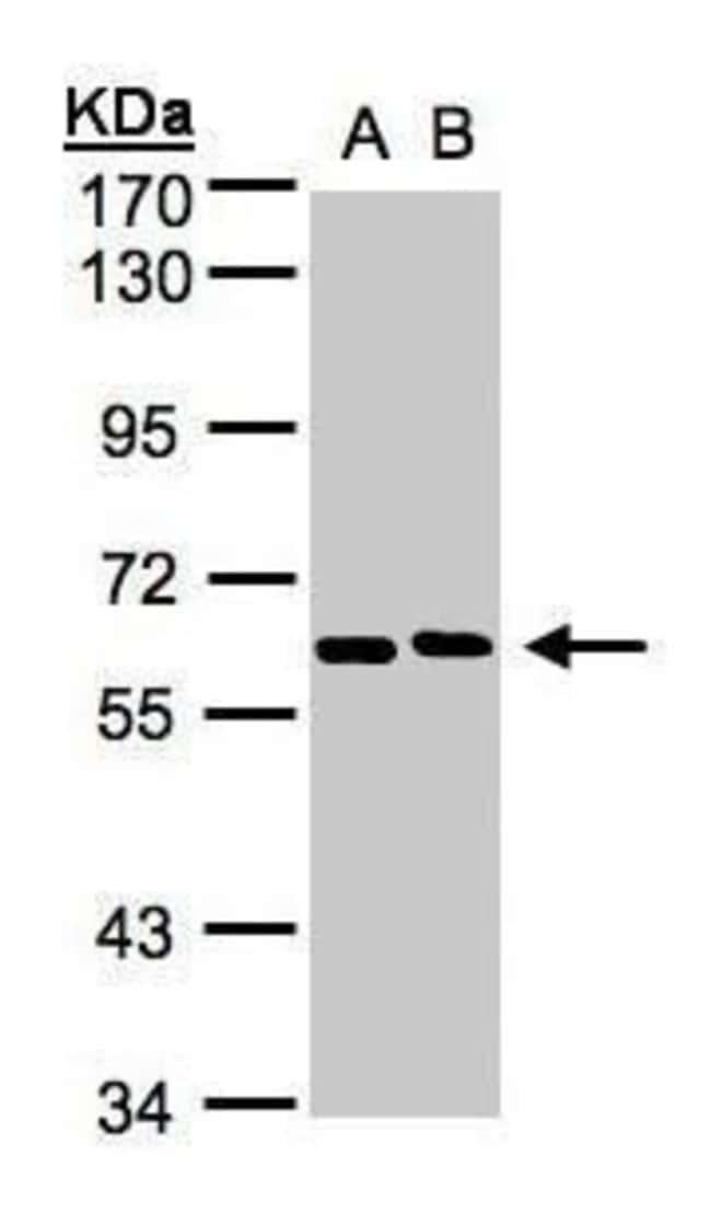 NT5C2 Rabbit anti-Human, Mouse, Polyclonal, Invitrogen 100 µL; Unconjugated