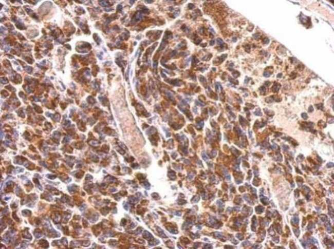 MDH2 Rabbit anti-Human, Mouse, Rat, Polyclonal, Invitrogen 100 µL;