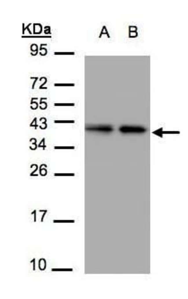 TBCC Rabbit anti-Human, Mouse, Polyclonal, Invitrogen 100 µL; Unconjugated