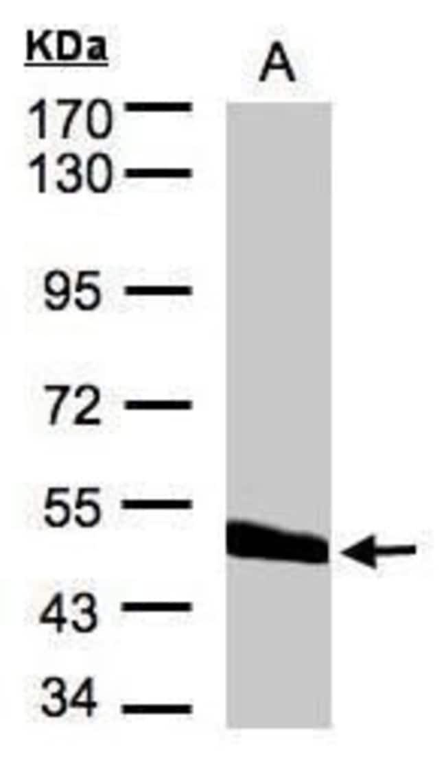 CPVL Rabbit anti-Human, Polyclonal, Invitrogen 100 µL; Unconjugated