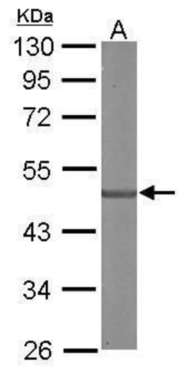 SDCCAG3 Isoform 1 Rabbit anti-Human, Mouse, Polyclonal, Invitrogen 100
