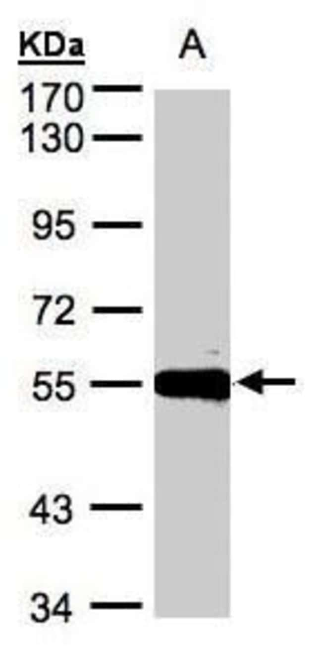 Carboxypeptidase M Rabbit anti-Human, Rat, Polyclonal, Invitrogen 100 µL;