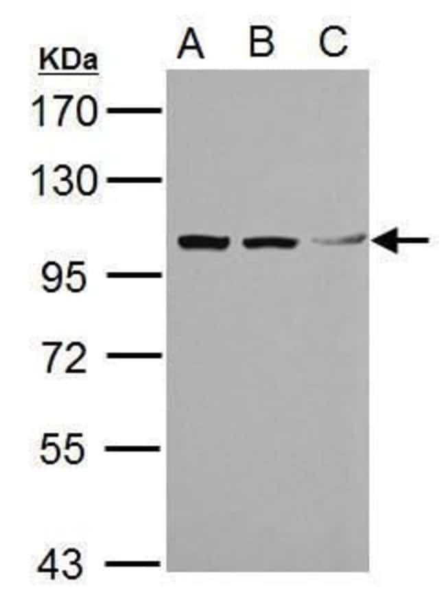 TRIM37 Rabbit anti-Human, Polyclonal, Invitrogen 100 µL; Unconjugated