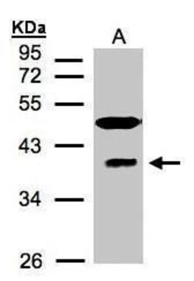 RAE1 Rabbit anti-Human, Polyclonal, Invitrogen 100 µL; Unconjugated