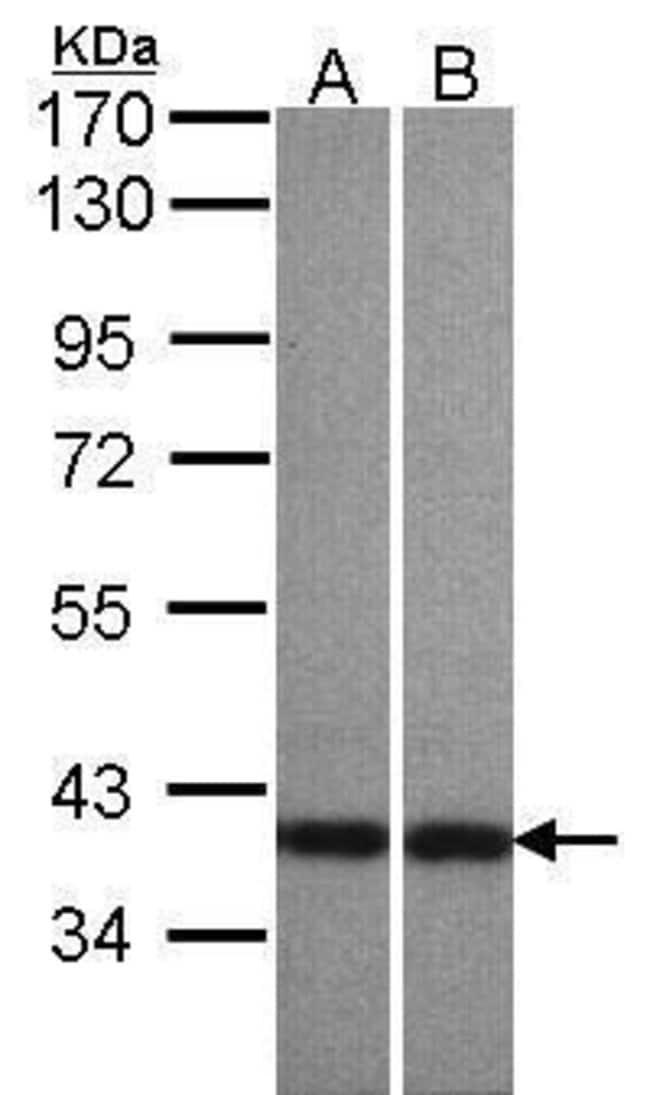 Centaurin alpha-1 Rabbit anti-Human, Polyclonal, Invitrogen 100 µL;