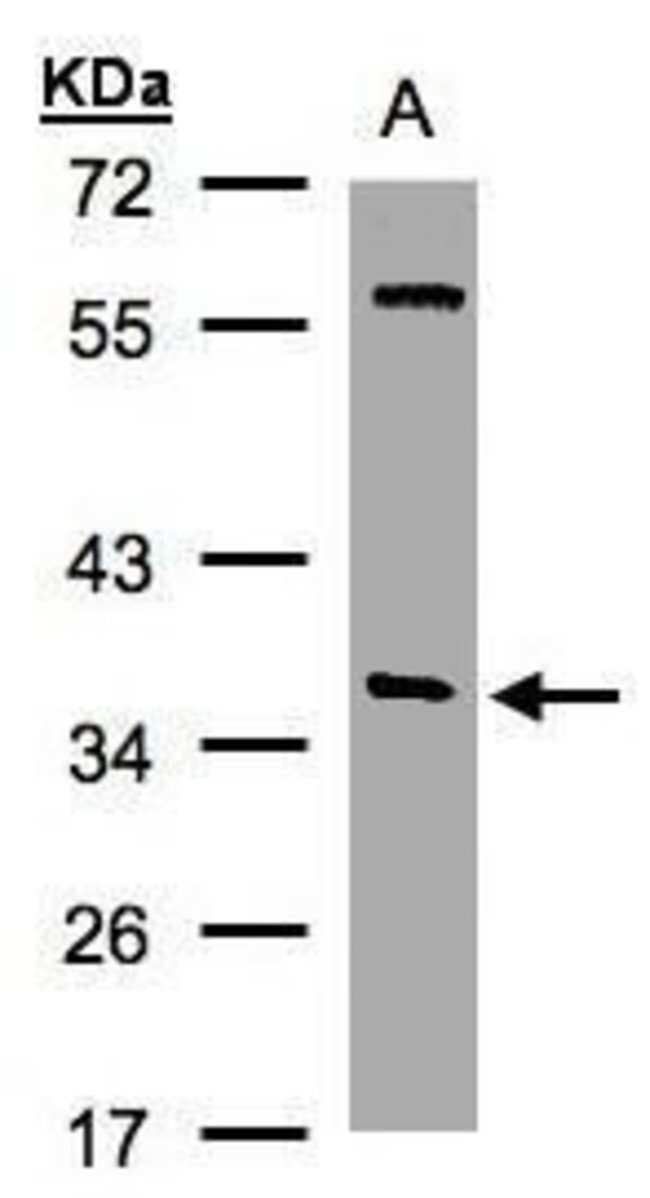 SNAP alpha Rabbit anti-Human, Mouse, Rat, Polyclonal, Invitrogen 100 µL;