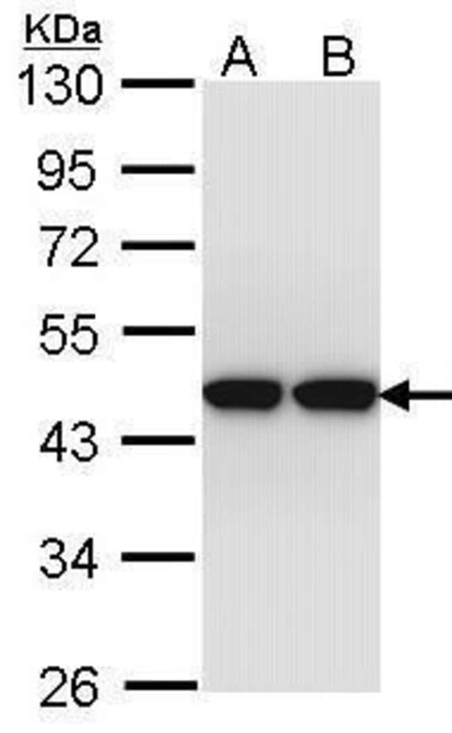 Actin-like 8 Rabbit anti-Human, Polyclonal, Invitrogen 100 µL; Unconjugated