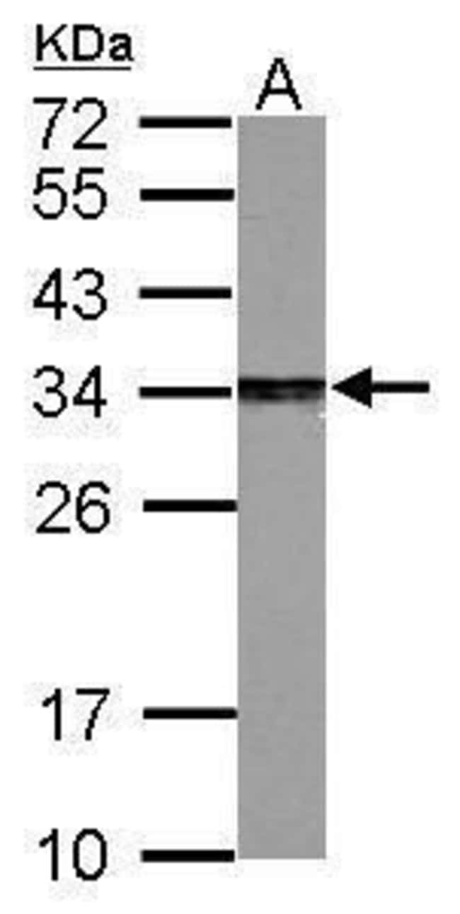 PSME3 Rabbit anti-Human, Mouse, Rat, Polyclonal, Invitrogen 100 µL;