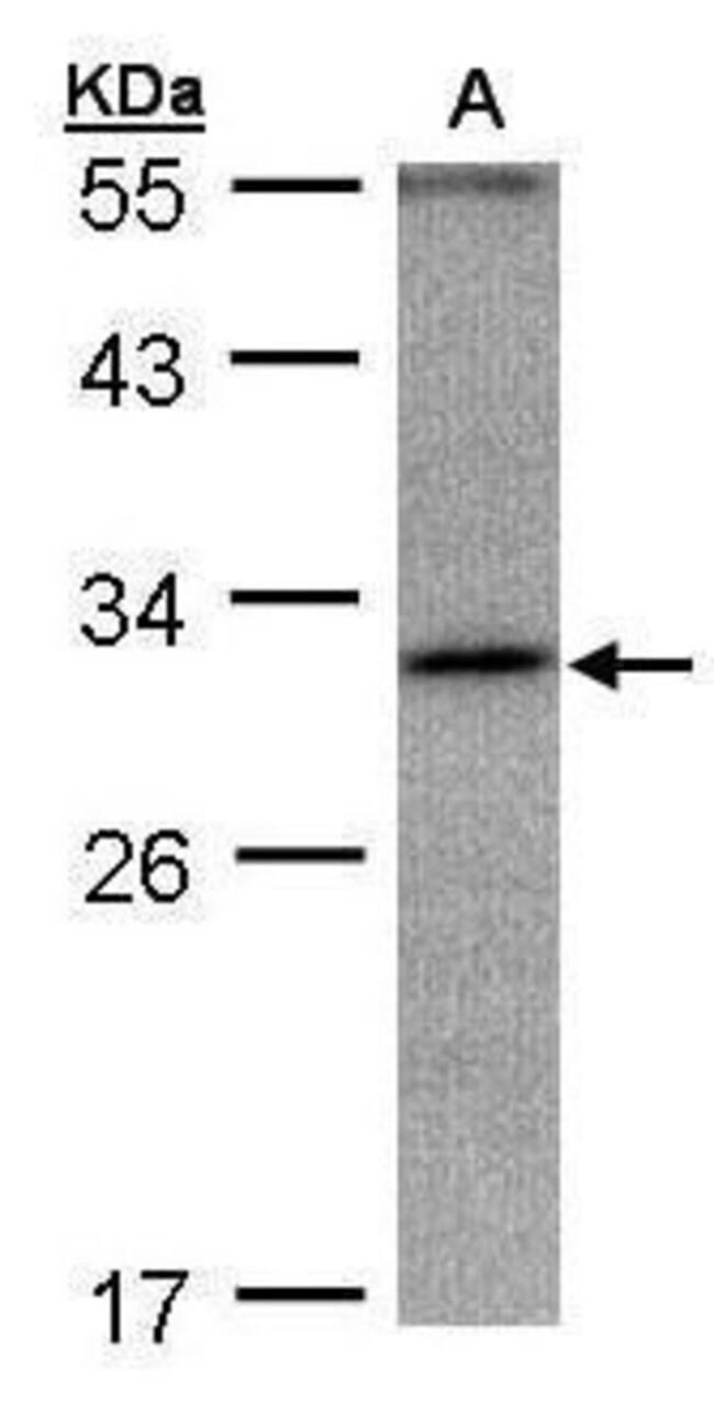 ANKRD45 Rabbit anti-Human, Polyclonal, Invitrogen 100 µL; Unconjugated
