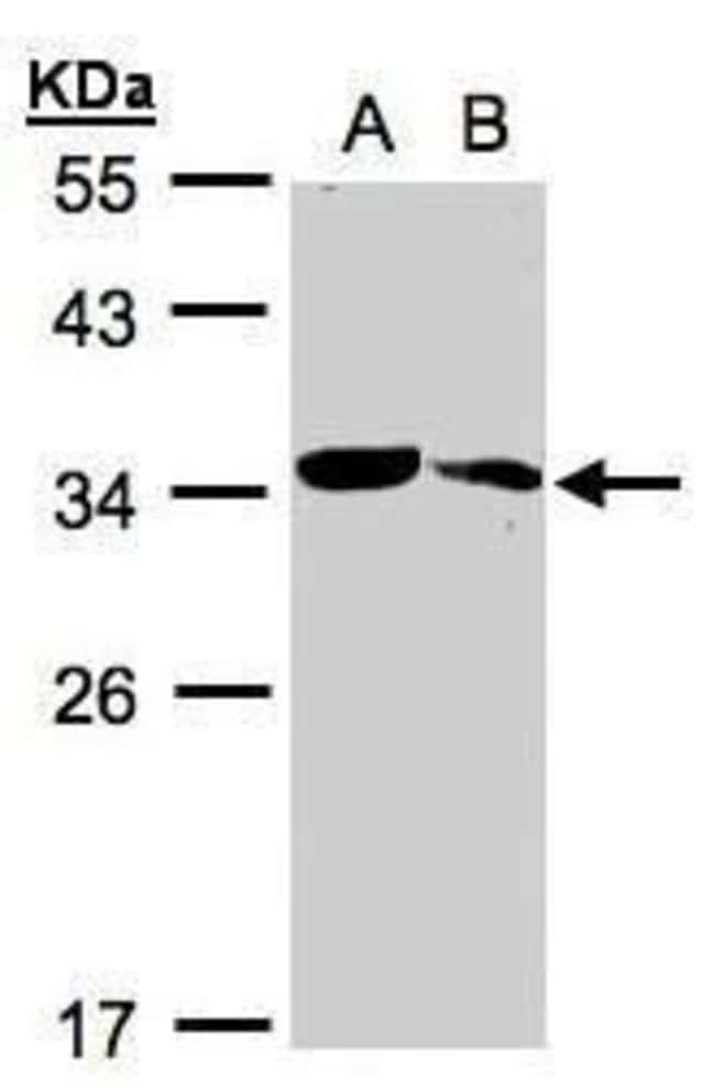 MMACHC Rabbit anti-Human, Mouse, Polyclonal, Invitrogen 100 µL; Unconjugated