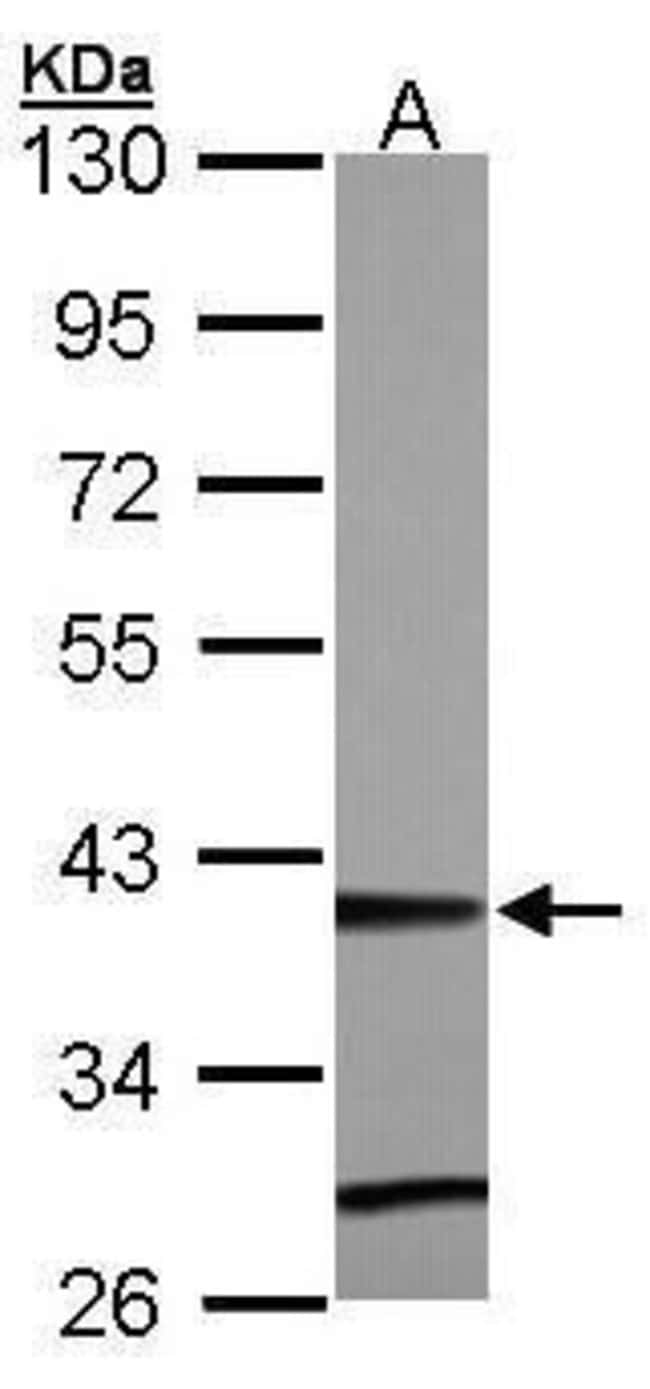 ZNF707 Rabbit anti-Human, Mouse, Polyclonal, Invitrogen 100 µL; Unconjugated
