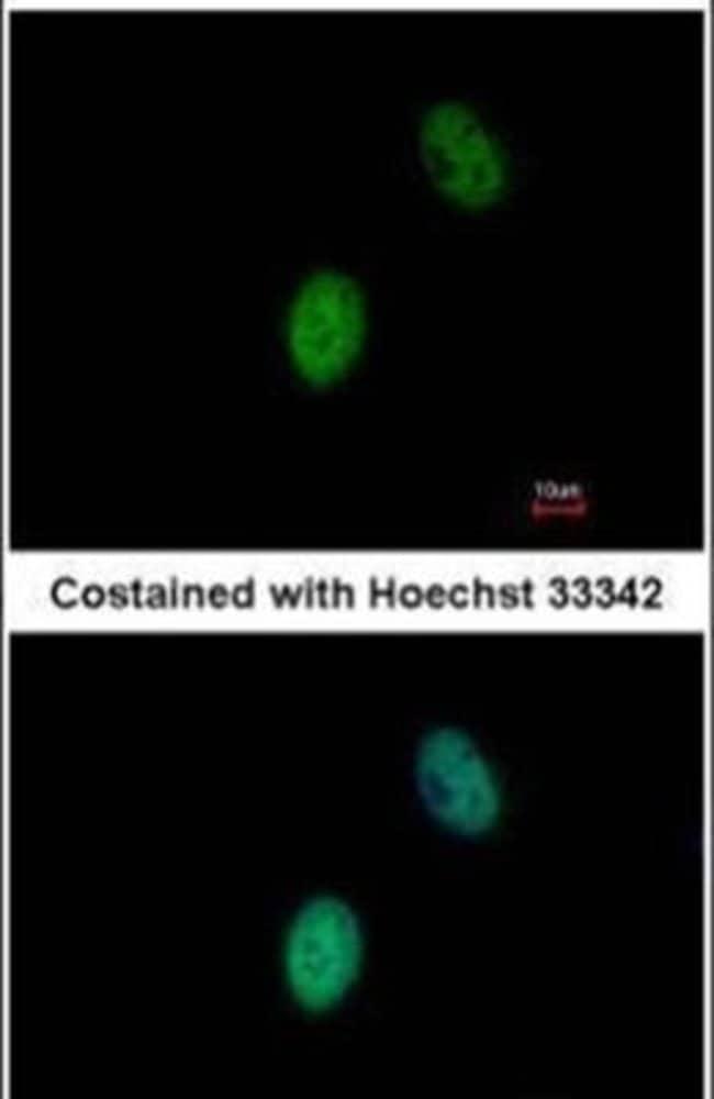 FHL5 Rabbit anti-Human, Polyclonal, Invitrogen 100 µL; Unconjugated
