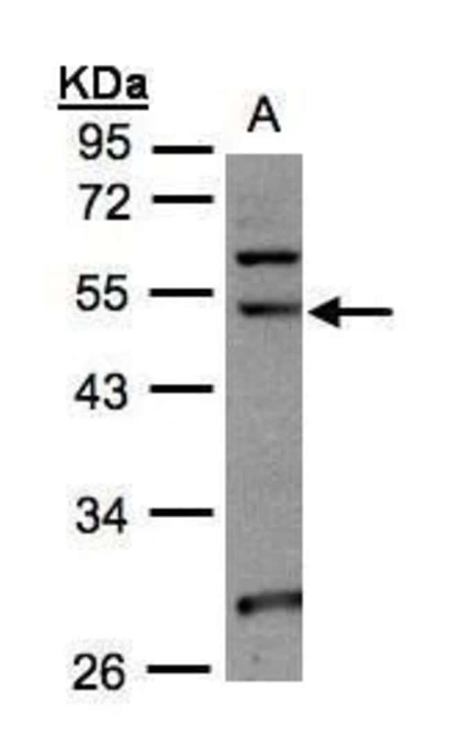 NSUN6 Rabbit anti-Human, Polyclonal, Invitrogen 100 µL; Unconjugated