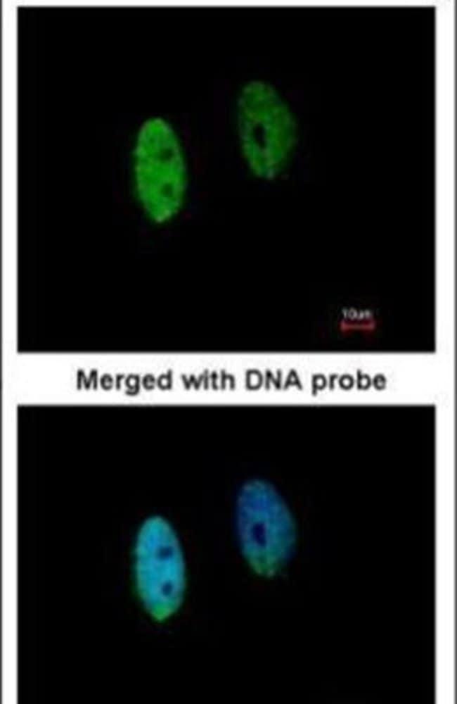 DENND1B Rabbit anti-Human, Mouse, Polyclonal, Invitrogen 100 µL; Unconjugated