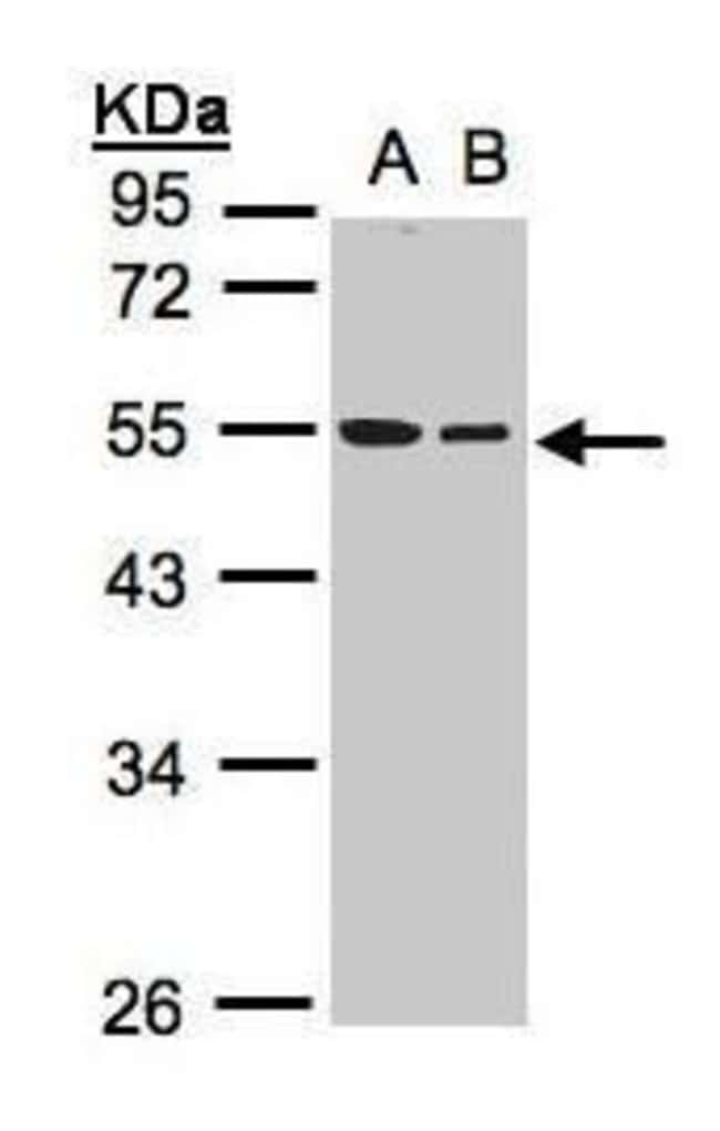 beta Tubulin Rabbit anti-Human, Mouse, Rat, Polyclonal, Invitrogen 100