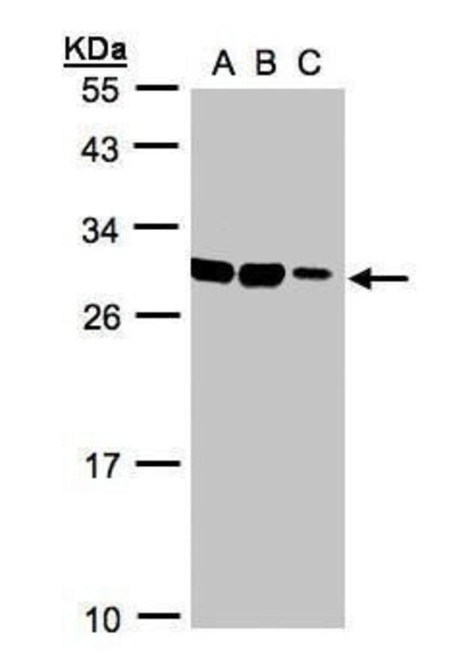 ASB9 Rabbit anti-Human, Polyclonal, Invitrogen 100 µL; Unconjugated