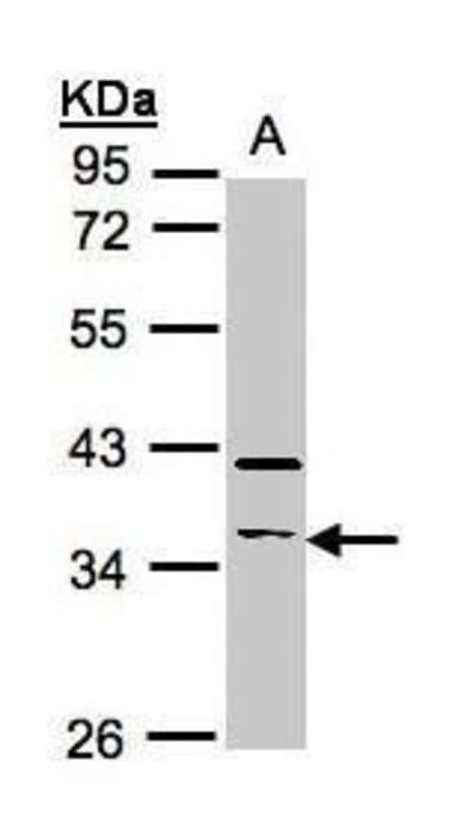 RASSF2 Rabbit anti-Human, Mouse, Polyclonal, Invitrogen 100 µL; Unconjugated