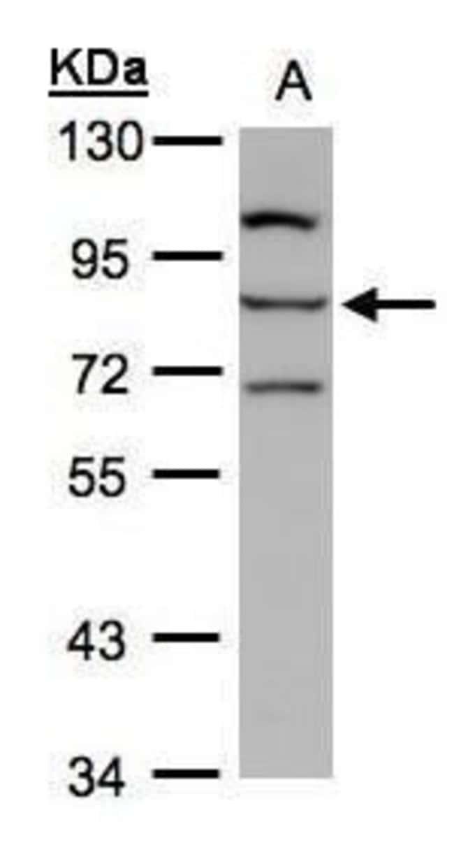 ALOXE3 Rabbit anti-Human, Polyclonal, Invitrogen 100 µL; Unconjugated
