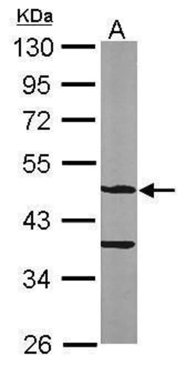 ASB4 Rabbit anti-Human, Mouse, Polyclonal, Invitrogen 100 µL; Unconjugated