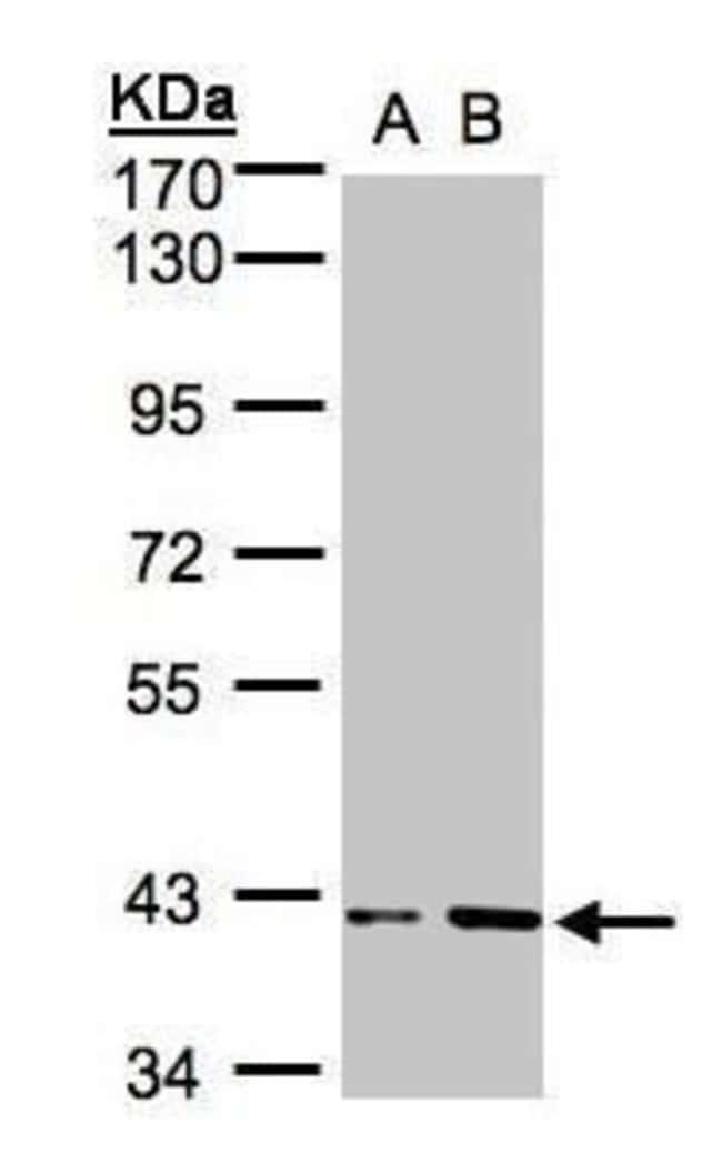 PRPSAP1 Rabbit anti-Human, Mouse, Polyclonal, Invitrogen 100 µL; Unconjugated