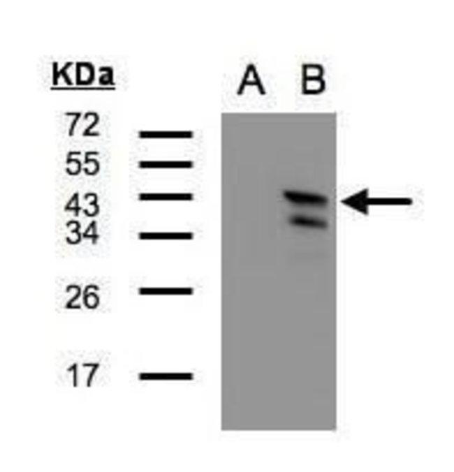 CAMK1D Rabbit anti-Human, Polyclonal, Invitrogen 100 µL; Unconjugated