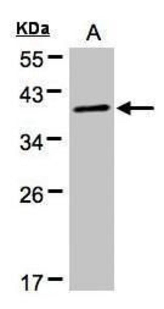 PKA alpha Rabbit anti-Human, Mouse, Polyclonal, Invitrogen 100 µL;