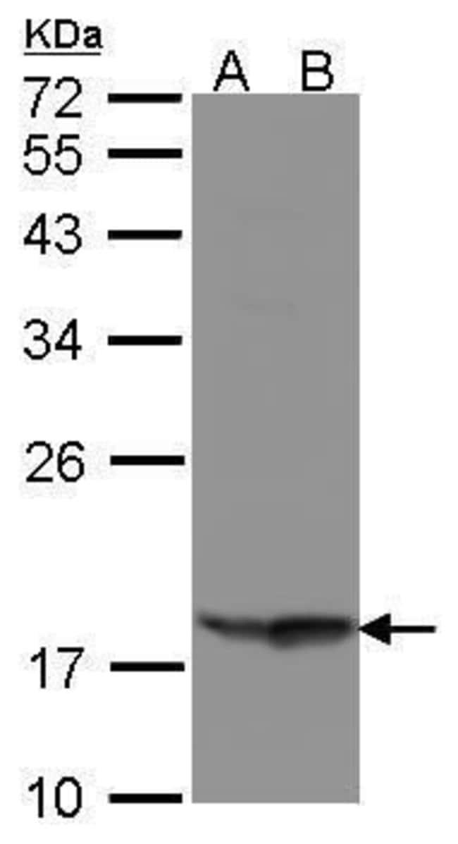 RARRES3 Rabbit anti-Human, Polyclonal, Invitrogen 100 µL; Unconjugated