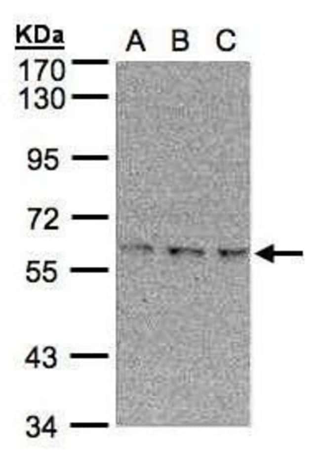 EPM2AIP1 Rabbit anti-Human, Polyclonal, Invitrogen 100 µL; Unconjugated