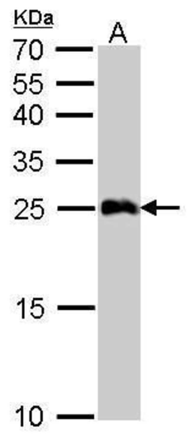 GSTA1 Rabbit anti-Human, Mouse, Polyclonal, Invitrogen 100 µL; Unconjugated