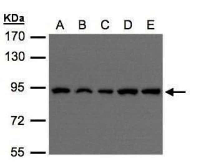 VPS35 Rabbit anti-Human, Mouse, Rat, Polyclonal, Invitrogen 100 µL;